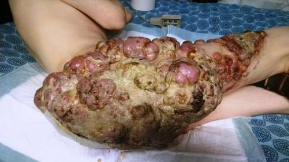 Benton Mackenzies Tumors